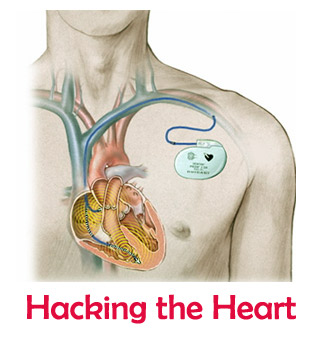 hack a pacemaker
